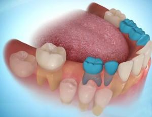 function teeth hinh-1b.jpg?w=300&am