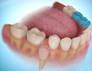 function teeth hinh-2.jpg?w=300&