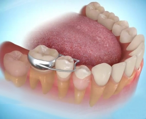 function teeth hinh-4.jpg?w=300&