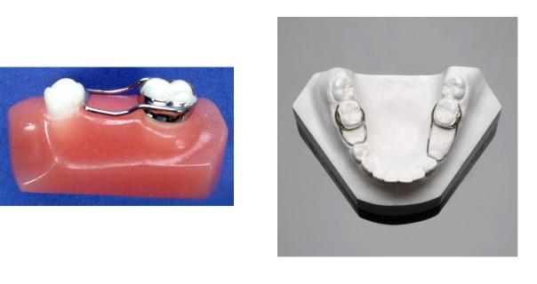 function teeth untitled-2.jpg?w=604